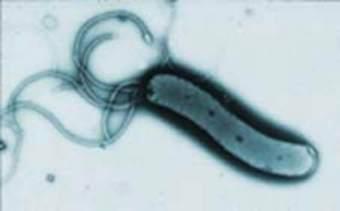 От вредных бактерий нас защитят полезные клетки из зеленых овощей