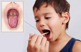 Дифтерия — пути передачи и восприимчивость к инфекции