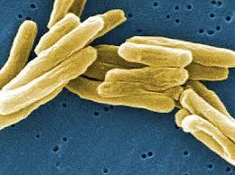 Почему живуч туберкулез?