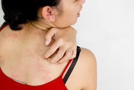 Главные признаки кожной аллергии