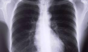 Туберкулёз, симптомы и лечение