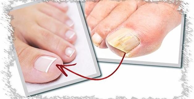 Лечение грибка ногтей подручными средствами