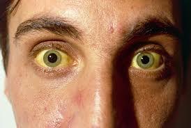 Как проявляется гепатит B: возьмите на заметку