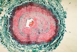 В США представлены убедительные результаты КИ препарата для лечения фиброза легких