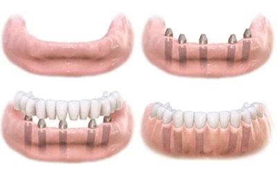 Восстановление зубов – имплантация или протезирование