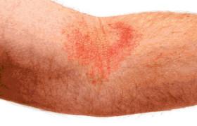 Атопический дерматит — как с ним бороться?