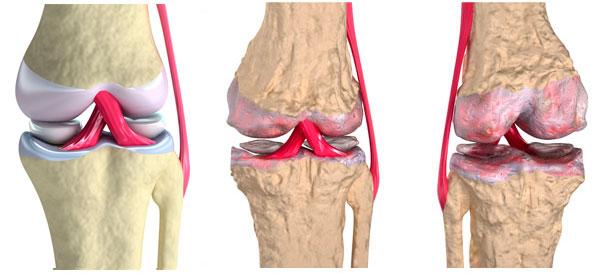 заболевания суставов коленный сустав
