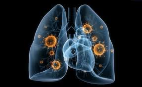 Пневмония. Болезни легких.