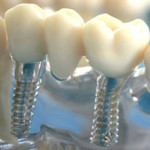 Лечение зубов в современном мире