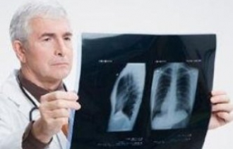 Правостороннее воспаление легких: осложнения после пневмонии у взрослых