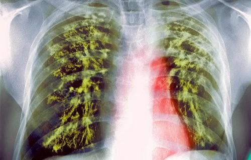 ВОЗ зафиксировала в мире девять миллионов больных туберкулезом
