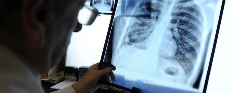 Новый метод ускорит диагностику туберкулеза