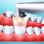 Как появляется и как лечится кариес зубов