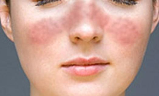 Системная красная волчанка – причины, симптомы, диагностика, лечение