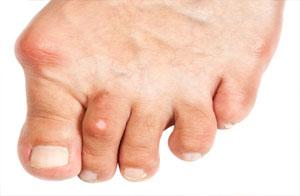 Подагра: симптомы и лечение