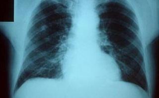 Надлежащая гигиена полости рта снижает риск развития внутрибольничной пневмонии