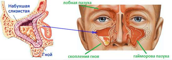 Профилактика и лечение гайморита