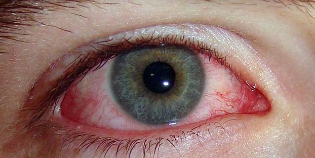 Глазные инфекции: как вылечить и не допустить