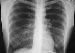 Внебольничная пневмония у лиц старших возрастных групп