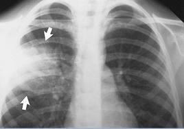 Пневмония — оценка риска, диагностика и лечение