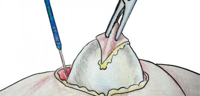 Как бороться с жировиками