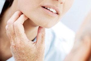 Симптомы железистой лихорадки и ее лечение