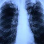 Российские ученые совершили первый за 46 лет прорыв в терапии туберкулеза