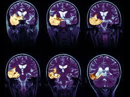 Локализация гриппа в мозгу