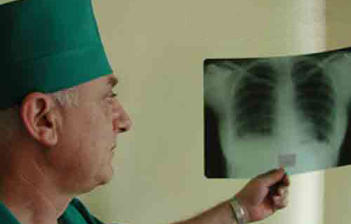 Больные туберкулезом и как за ними ухаживать