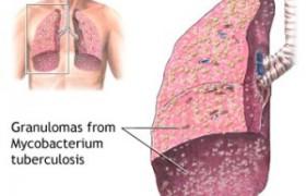 Заболевание легких и их симптомы