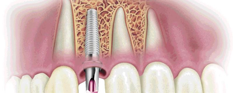 Имплантации зубов: возможны ли осложнения?