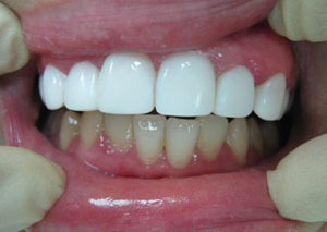 Уход за зубами с коронками, винирами, пломбами