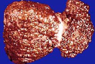 Цирроз печени. Причины и симптомы заболевания.