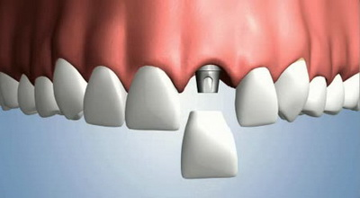 Вторая жизнь зубов: имплантаты