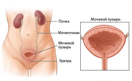 Удаление опухоли мочевого пузыря