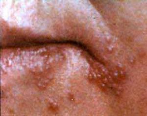 Простой вирус герпеса может оказаться полезным для подростков