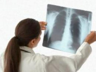 Пневмококковая пневмония