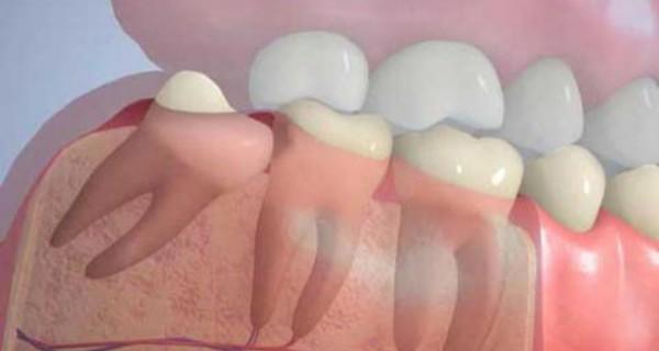 Когда именно необходимо удалять зубы
