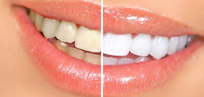 Проблемы зубов