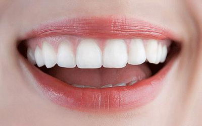 Некоторые рекомендации при отбеливании эмали зубов