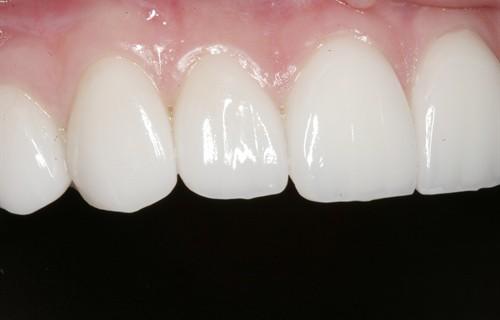 Ламинирование зубов – одна из услуг предоставляемая стоматологами