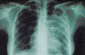 Найден новый белок, который может помочь при туберкулёзе