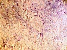 Опасный вирус сможет спасти людей от рака кожи