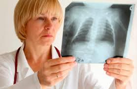 Воспаление лёгких у ребёнка