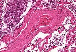 Пневмония хроническая