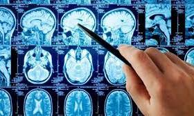МРТ поможет выявить опасность развития депрессии ещё в детском возрасте