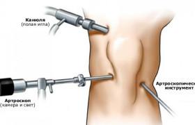 Артроскопия: правильное лечение суставов