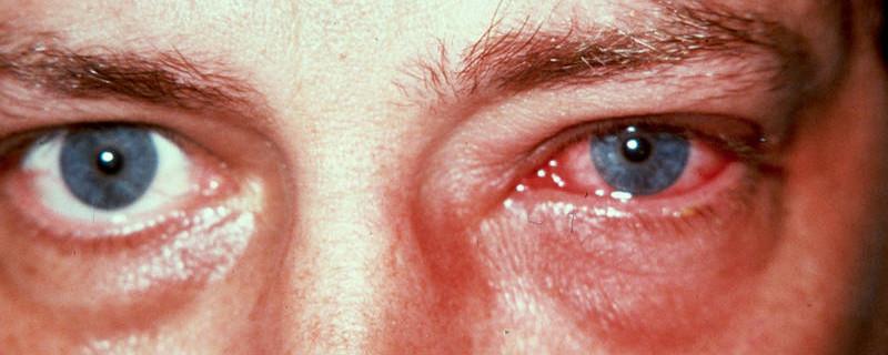 Симптомы конъюнктивита
