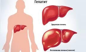 Гепатиты хронические