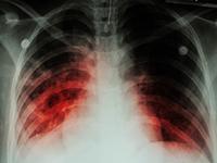 Доступ к новейшим ЛС имеют только 2% пациентов с мультирезистентной формой туберкулеза